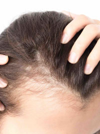 ANDROGENIC HAIR THINNING